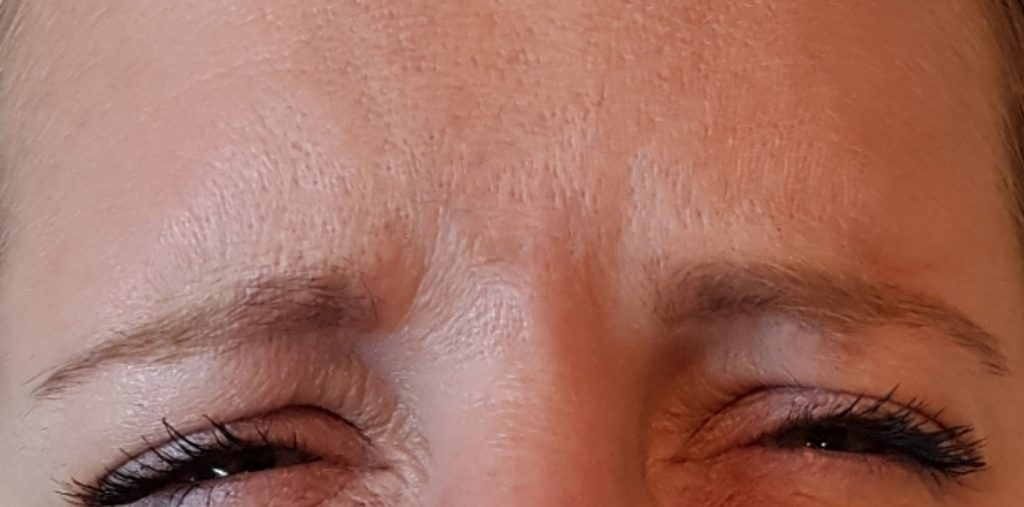 Image of customer after anti wrinkle treatment.