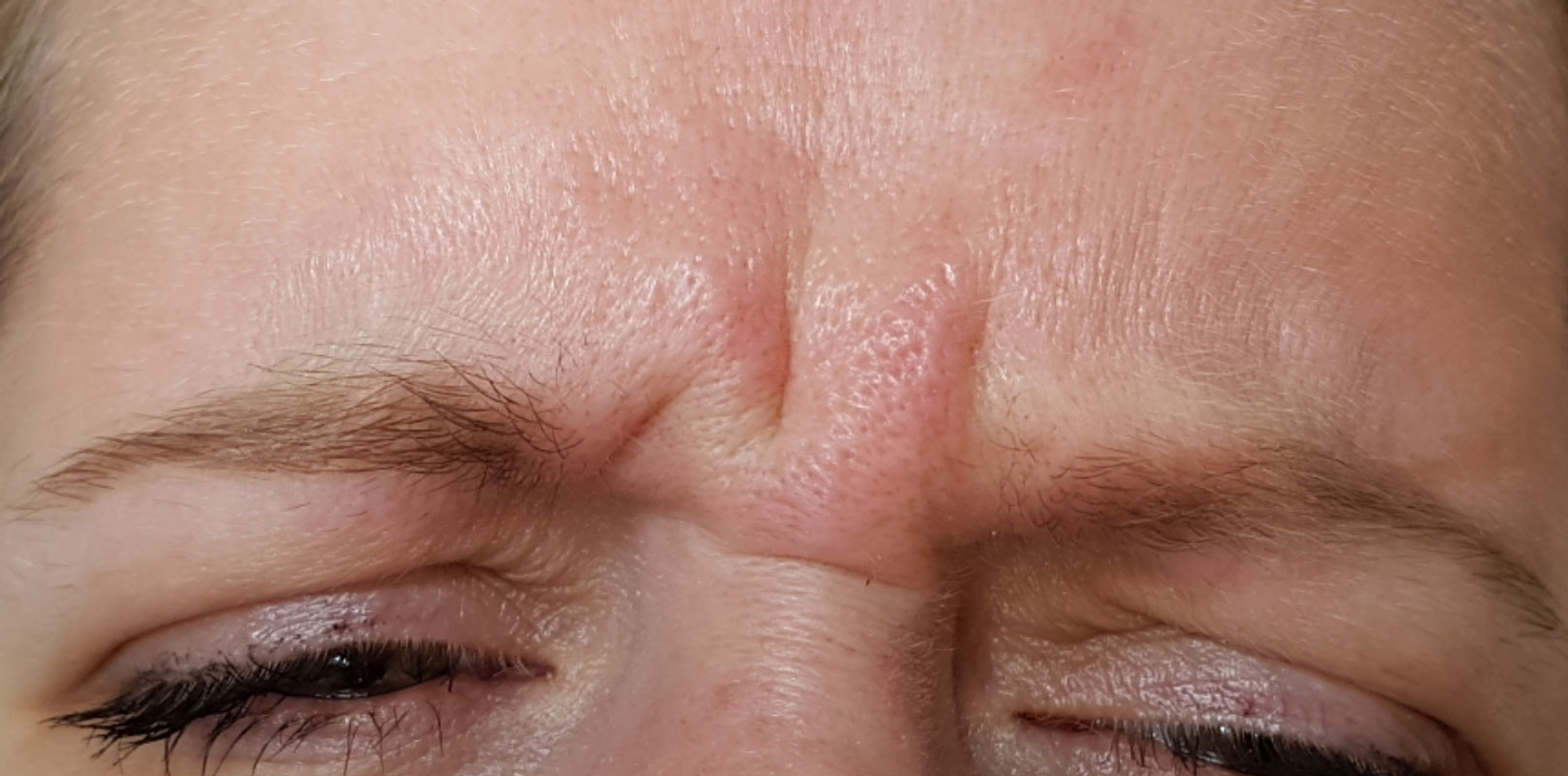 Image of customer before anti wrinkle treatment.