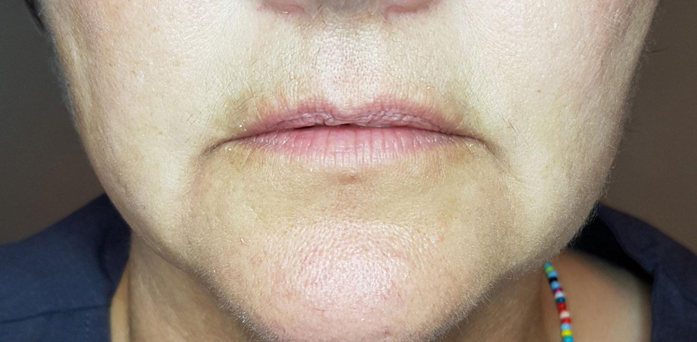 Image of customer before dermal filler treatment.