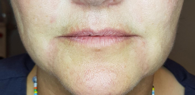 Image of customer after dermal filler treatment.