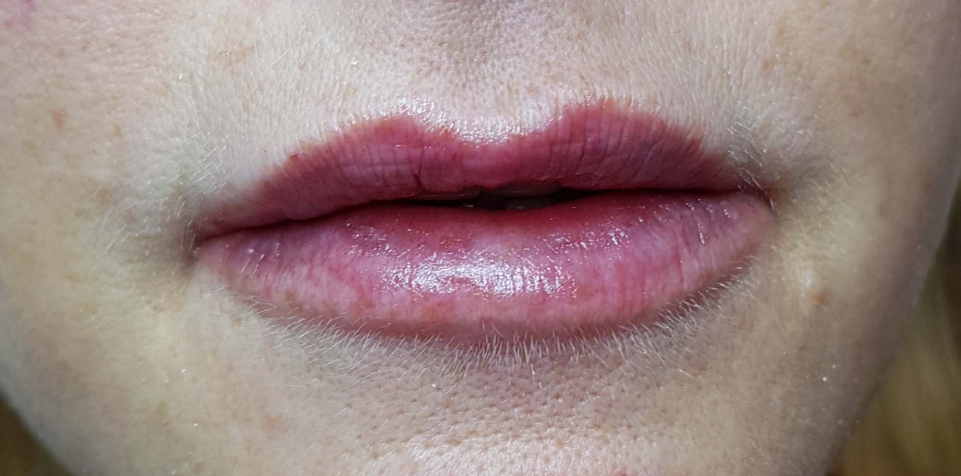 Image of customer after lip filler treatment.