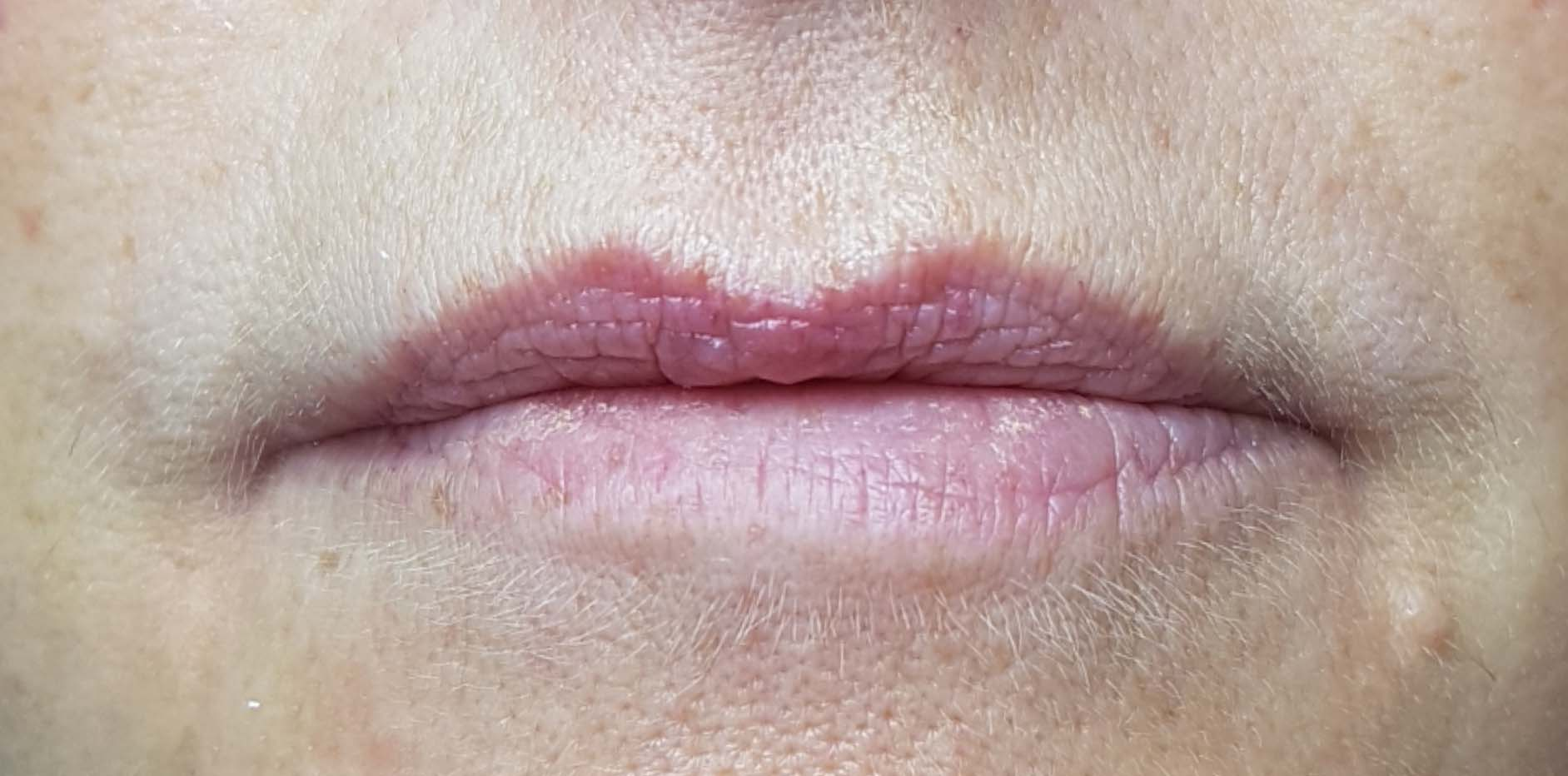 Image of customer before lip filler treatment.