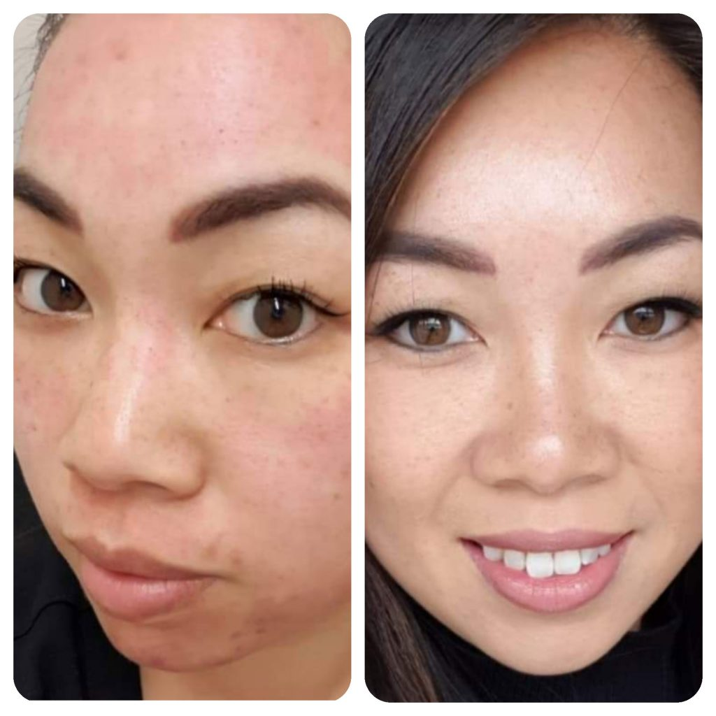 Image of customer before and after microneedling treatment.